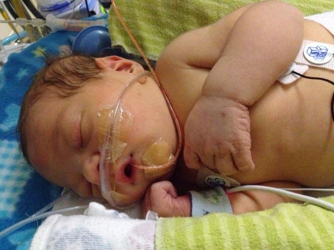 Austin Birth in NICU